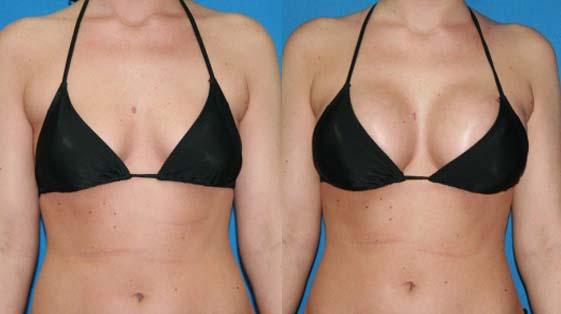 ranking preparatów na większy biust