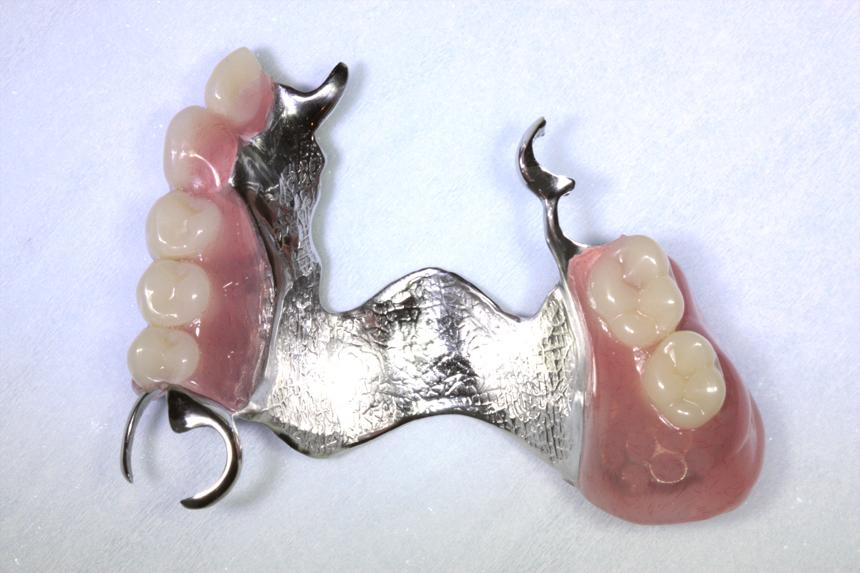 protezy_szkieletowe